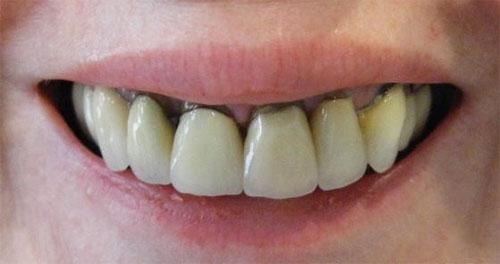 Màu sắc răng sứ kim loại không thẩm mỹ