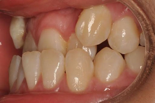 Móm do răng