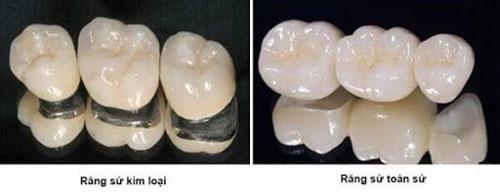 Nên chọn răng sứ toàn sứ phục hình