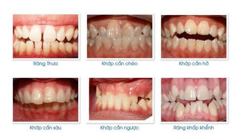 Những trường hợp nên thực hiện chỉnh hình răng