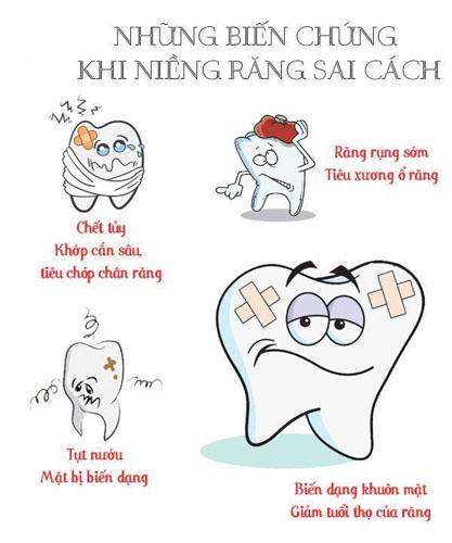Niềng răng bị hỏng nguyên nhân do đâu?