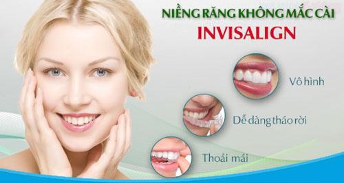 Niềng răng Invisalign giá bao nhiêu?