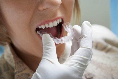 Niềng răng Invisalign phù hợp cho răng lệch lạc ở mức độ nhẹ