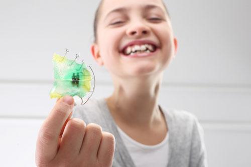 Niềng răng khí cụ tháo lắp cho trẻ dưới 12 tuổi