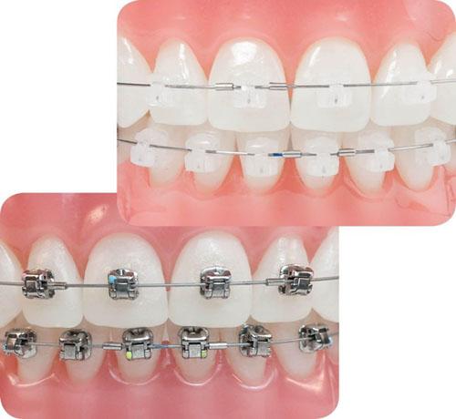 Niềng răng mắc cài 3M UGSL là gì?