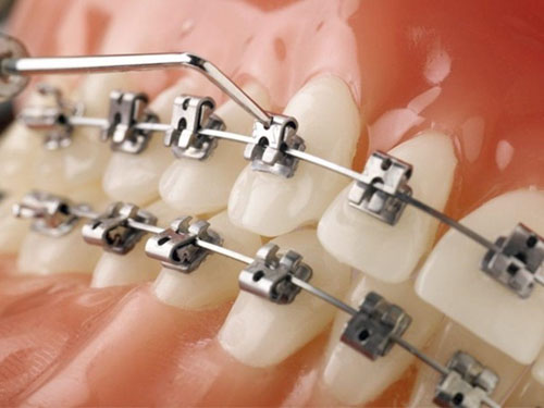Niềng răng mắc cài 3M UGSL là phương pháp chỉnh nha hiện đại