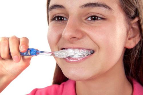 Niềng răng thất bại còn có thể do vệ sinh răng sai cách