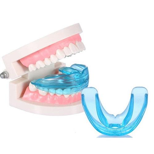 Phương pháp niềng răng silicon