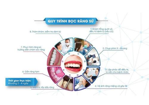 Quy trình bọc răng sứ tại nha khoa uy tín