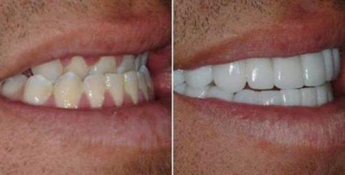 Răng hô ngược vẫn có thể bọc sứ