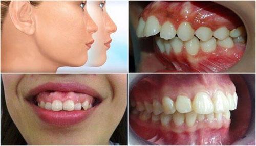 Răng hô vẩu là tình trạng khá phổ biến