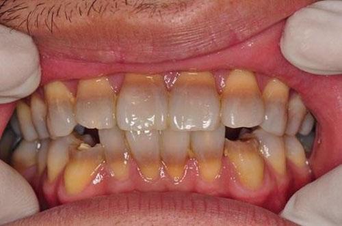 Răng nhiễm màu nặng không thể tẩy trắng