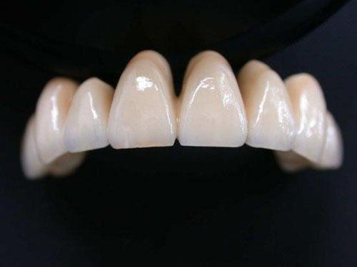 Răng sứ Ceramco có tốt không?