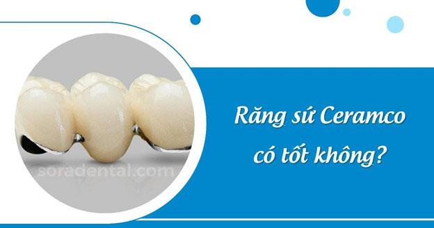 Răng sứ Ceramco là gì? Có bền đẹp không?