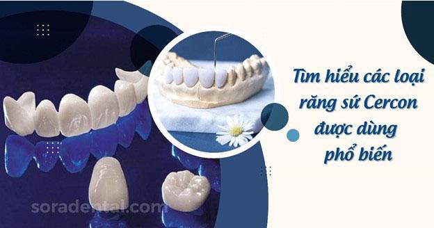 Răng sứ Cercon giá bao nhiêu?