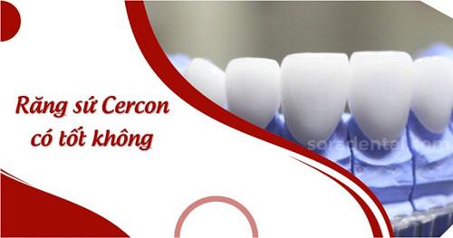 Răng sứ Cercon là gì? có tốt không?