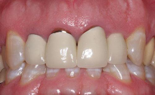 Răng sứ kim loại đen viền nướu