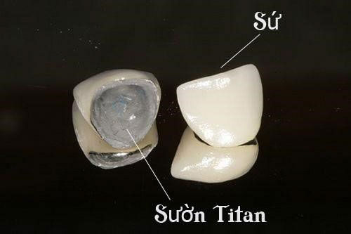 Răng sứ kim loại Titan
