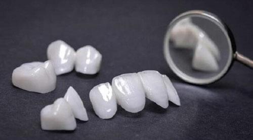 Răng sứ Zirconia thẩm mỹ cao