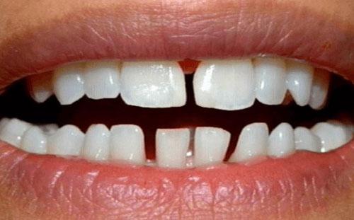 Răng thưa không thể hàn trám răng
