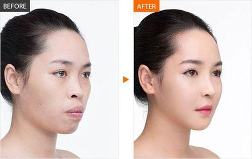 Sau phẫu thuật hàm hô gương mặt trông trẻ trung hơn rất nhiều