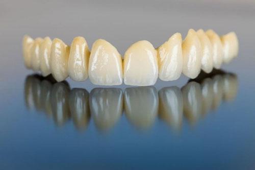 Thẩm mỹ của răng Titan chỉ mang tính tương đối