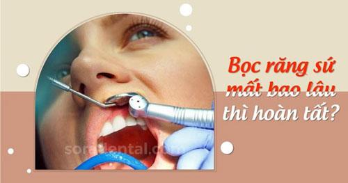 Thời gian bọc răng sứ mất bao lâu?