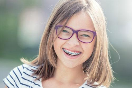 Trẻ nên niềng răng sớm để có hàm răng đều đẹp khi trưởng thành
