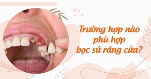 Trường hợp nào phù hợp bọc sứ răng cửa?