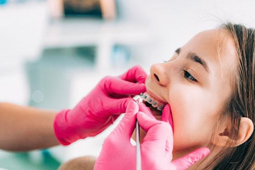 Từ 12 – 16 tuổi là thời điểm lý tưởng nhất để niềng răng