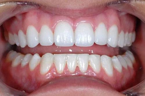 Tuổi thọ răng sứ lâu dài hơn 20 nằm