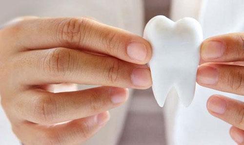 Cần chăm sóc răng sứ đúng cách