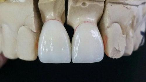 Đặc điểm răng sứ Emax
