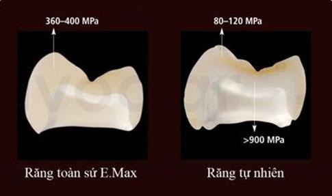 Độ cứng chắc của răng sứ Emax