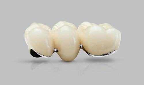 Dòng răng sứ Titan Berlin