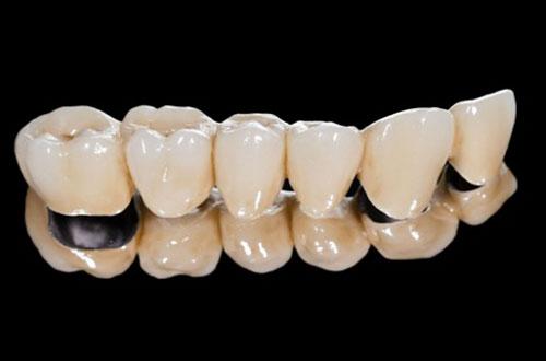 Dòng răng sứ Titan Margin