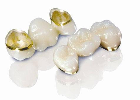 Dòng răng sứ Titan Vita