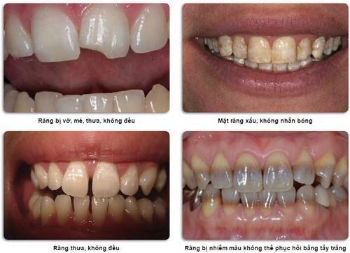 Những trường hợp nên bọc răng sứ Emax