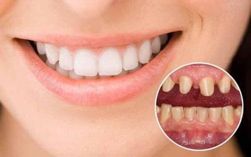 Nhược điểm răng sứ Venus