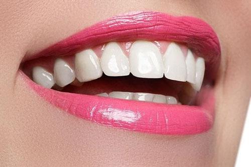 Răng sứ Cercon HT là gì?