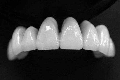 Răng sứ Cercon mang thẩm mỹ cao