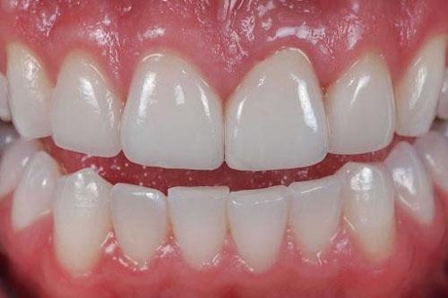 Răng sứ Cercon sở hữu nhiều ưu điểm nổi bật