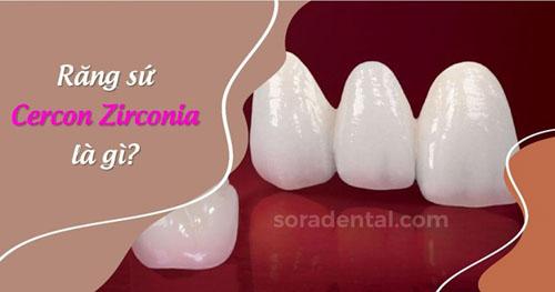 Răng sứ Cercon Zirconia là gì?