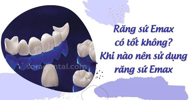 Răng sứ Emax là gì? Giá bao nhiêu? Có tốt không?