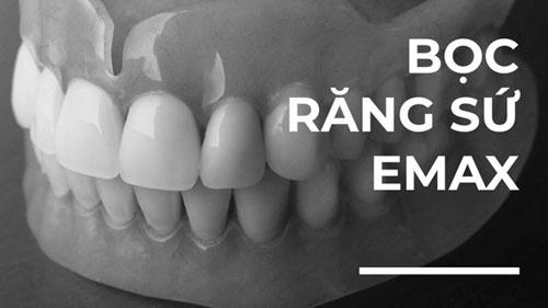 Răng sứ Emax là gì?