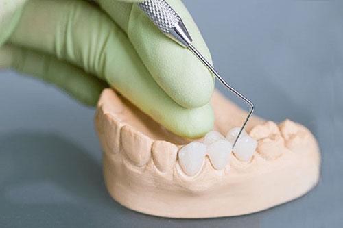 Răng sứ không kim loại có tốt không?