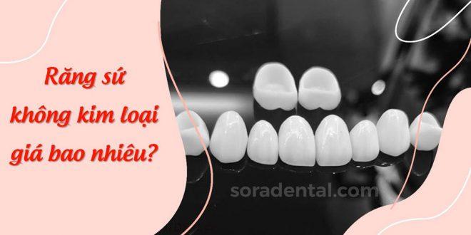 Răng sứ không kim loại giá bao nhiêu?