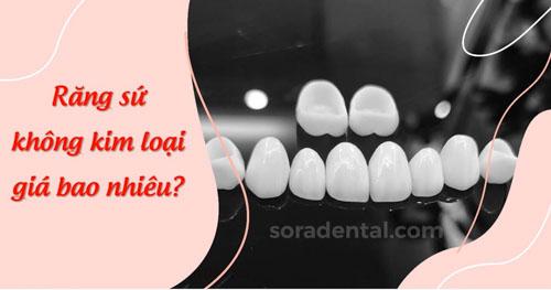 Răng sứ không kim loại giá bao nhiêu? Có tốt không?
