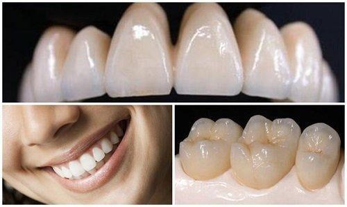 Răng sứ Titan được ưa chuộng sử dụng so với răng sứ kim loại