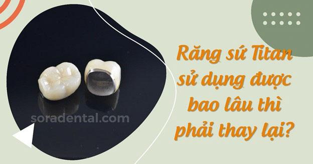 Răng sứ Titan sử dụng được bao lâu thì phải thay lại?